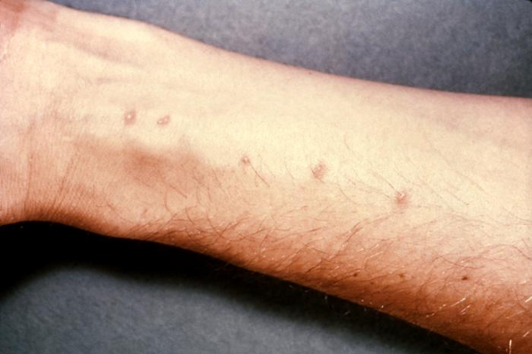 Schistosomiasis can cause a rash